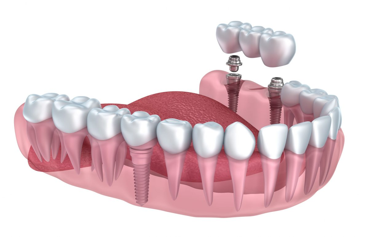 Tooth replacement options pictures Oral-B 3D White Electric Toothbrush Replacement Brush